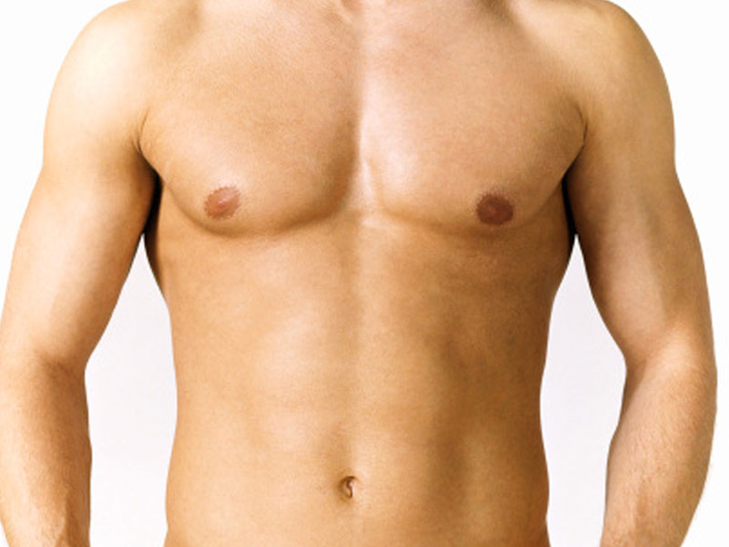 Implants pectoraux Tunisie résultats
