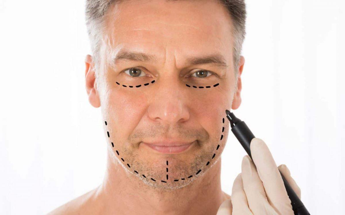 chirurgie visage homme Tunisie
