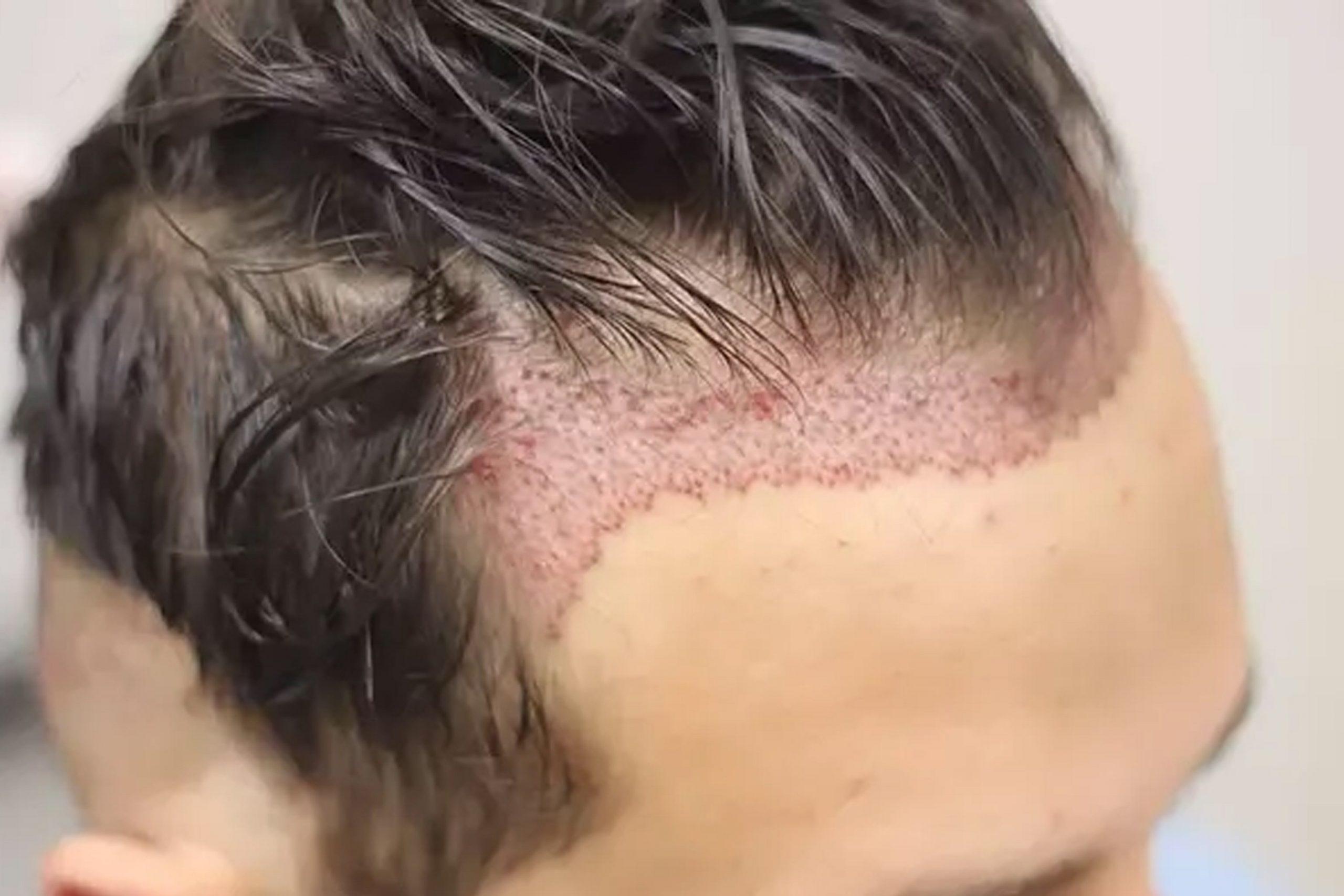 Greffe cheveux fue Tunisie