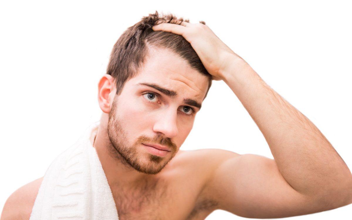 Greffe de cheveux homme