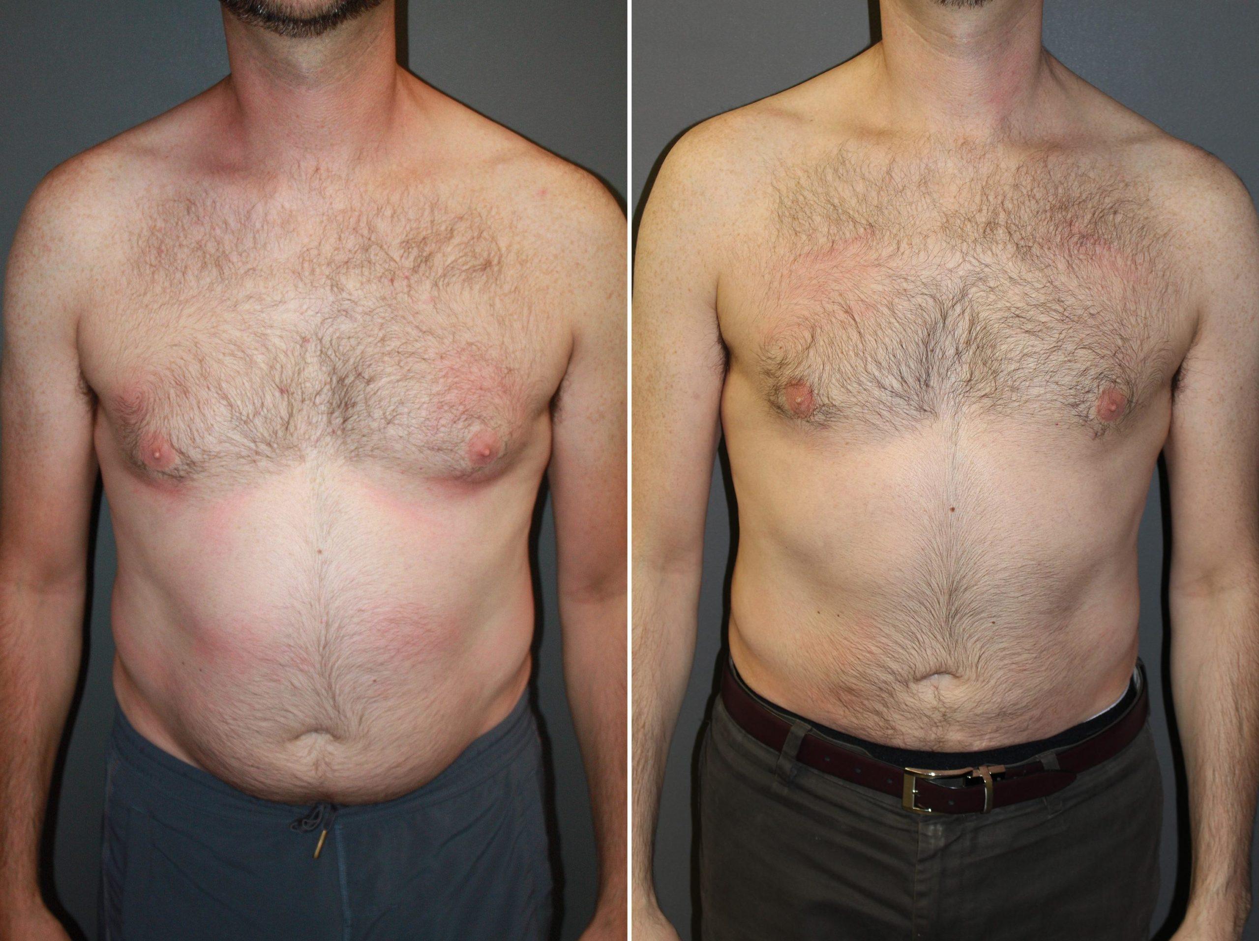 liposuccion-homme-avant-après