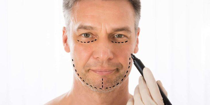 Chirurgie esthétique du visage pour homme